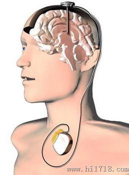 脑起搏器有国产的了